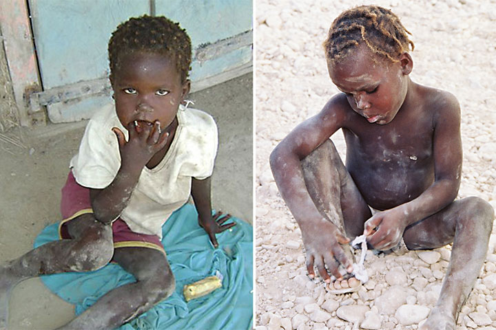2-starving-children