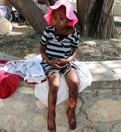 A poor young girl waits for medical care at Love A Child.