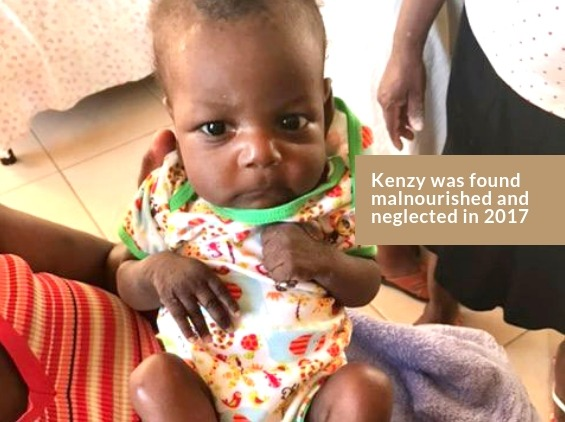 Kenzy - Before Malnutrition Center Treatment in Fond Parisien, Haiti