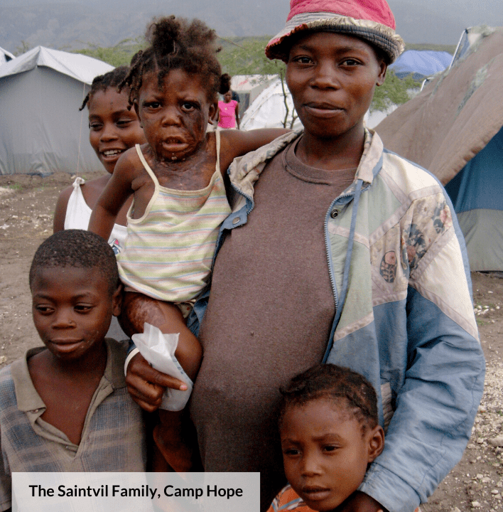 The earthquake in 2010 left thousands of families without homes. Pictured in the center, Marie Ange was badly burned.